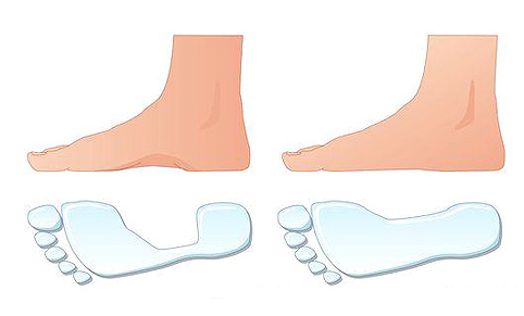 C0072003 Flat foot comparison 482